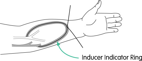 VASCULAR FLOW - Diagram ARM 2